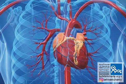 غربالگری سکته های قلبی و مغزی