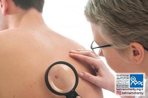 آگاهی از سرطان پوست موسسه خیریه بهنام دهش پور